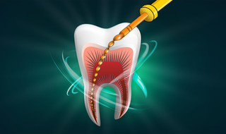 Root Canal Preparation